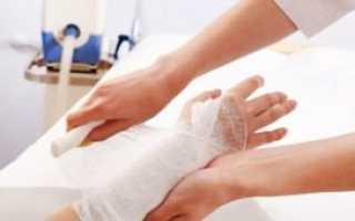 Правила оплаты взносов на травматизм